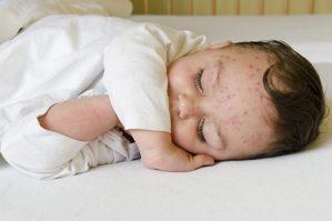 22 de febrero: Día Mundial de la Encefalitis