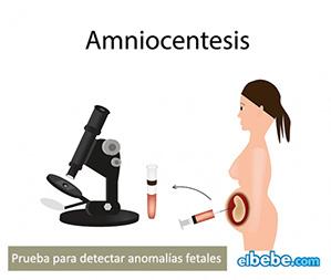 La amniocentesis, prueba de diagnóstico prenatal | Elbebe.com
