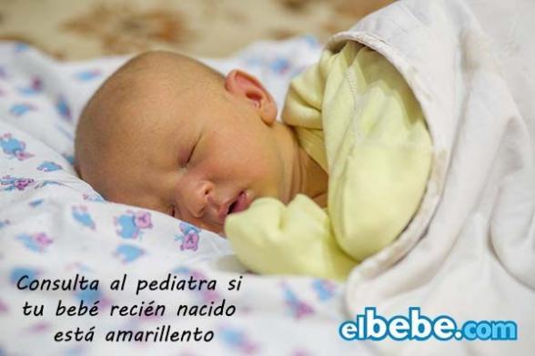 La ictericia del recién nacido | Elbebe.com