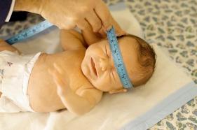 La forma de la cabeza y la boca del bebé prematuro   Elbebe.com