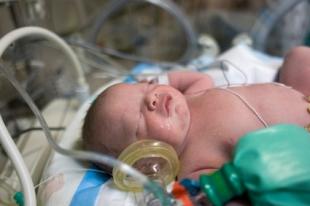 Convulsiones en el bebé prematuro