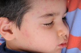 Rubeola enfermedades víricas niños y embarazo
