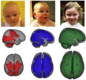 Lactancia materna y desarrollo cerebral del bebé