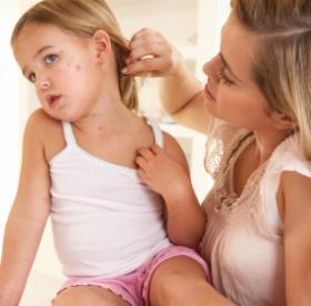 Sarampión enfermedades víricas infantiles vacunación y vacunas niños