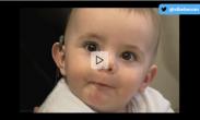 Sordera congénita e implantes cocleares | Elbebe.com