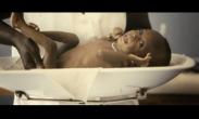 Desnutrición infantil: campaña cumpledías de UNICEF